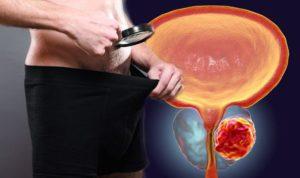 Uromexil pareri, forum, comentarii